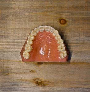 Retainers | Hlavaty Orthodontics