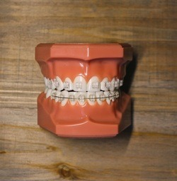 Ceramic Clear Hlavaty Orthodontics
